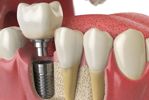 Implantologia y cirugía